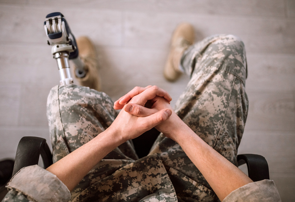 Veteran with prosthetic leg, waiting to discuss his disability appeal