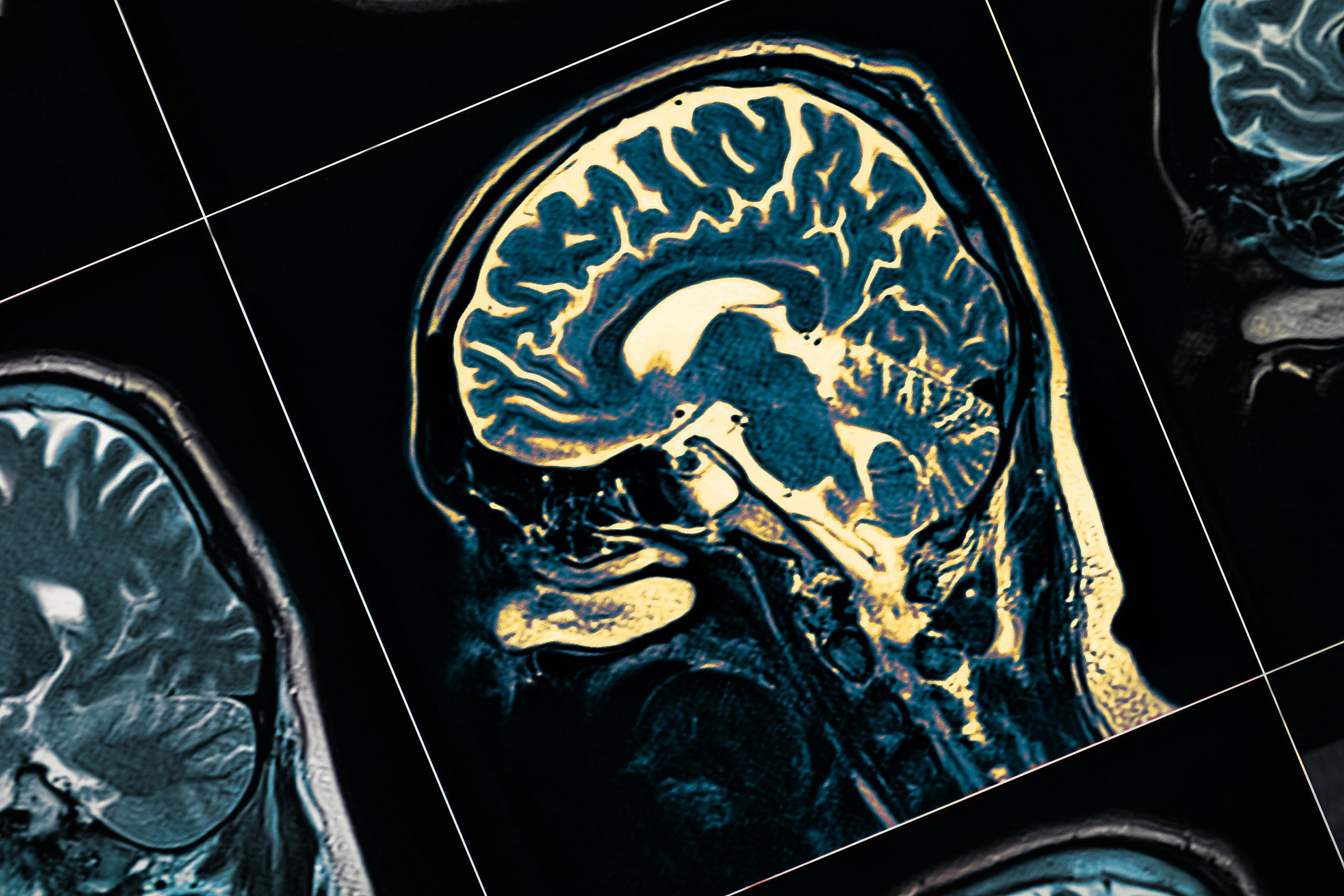 MRI of brain with Parkinson's Disease